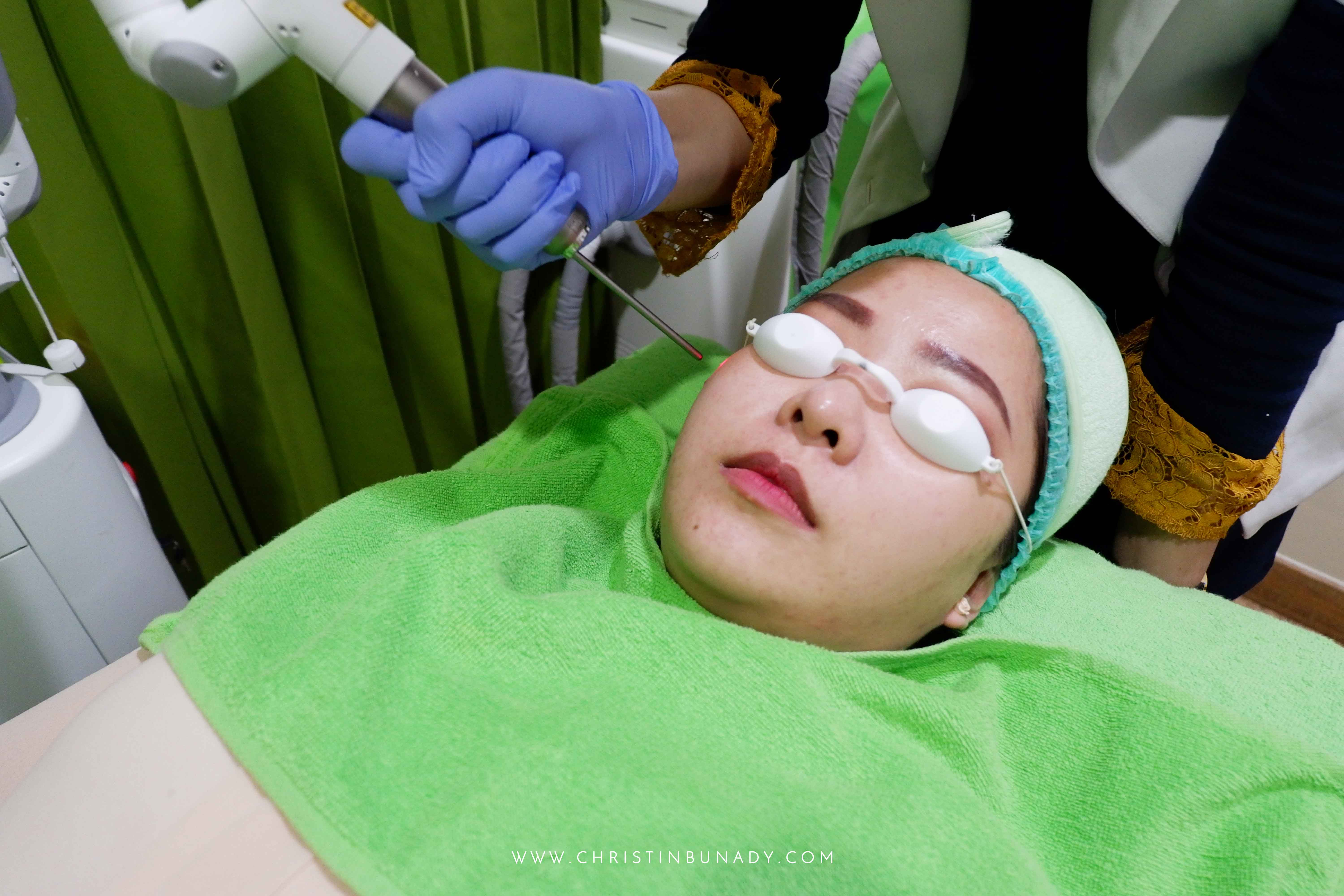 ZAP Photo Facial Experience
