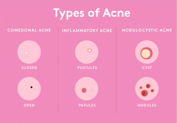 Acne story journey (Graphic Warning!)